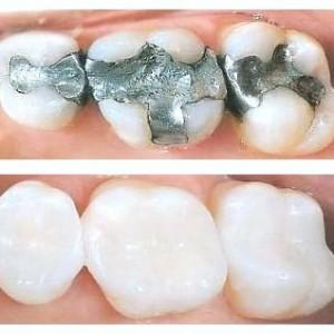 a before and after of tooth colored fillings | dentist in coffs harbour nsw