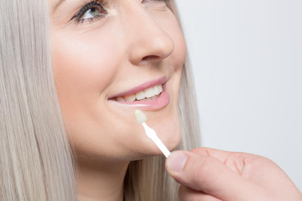 dental veneers in coffs harbour nsw