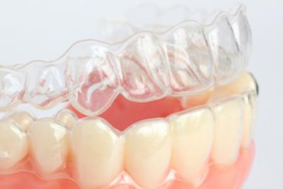 Clear Braces | Coffs Harbour Dentist