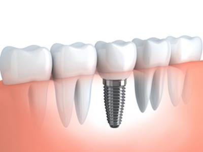 Dental Implant Diagram | Dentist Coffs Harbour