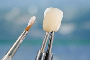 Dental Crown | Coffs Harbour Dentist