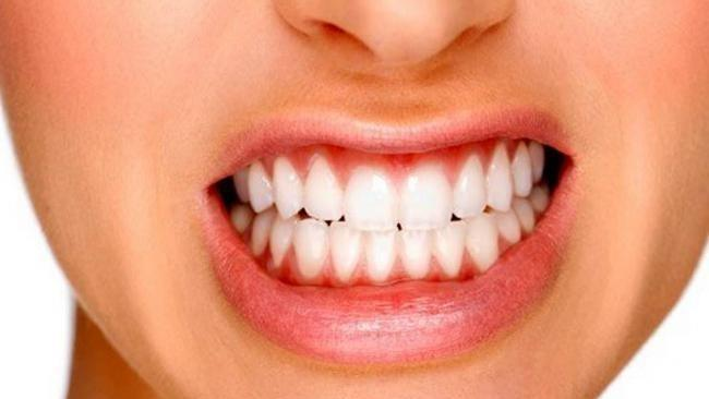 Bruxism or tooth grinding is very common, and you may not know you are doing it.