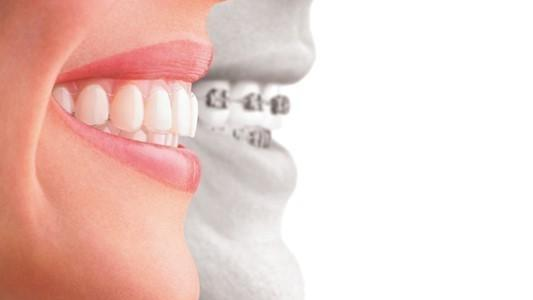 Modern Orthodontics | Arthur Street Dental | Coffs Hrabour