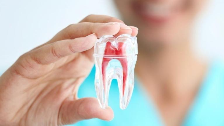 a dentist holds up a model of a tooth | root canals coffs harbour