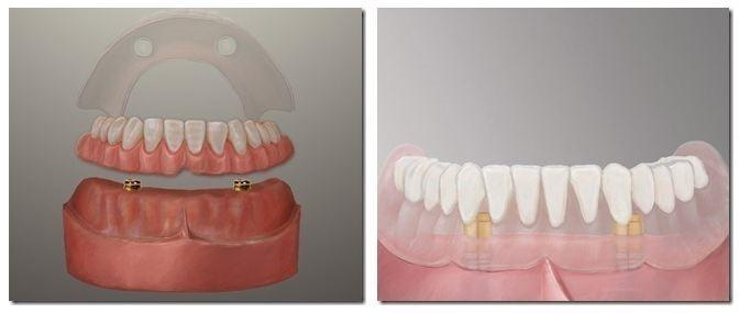 a cross section of a denture | dental implants coffs harbour