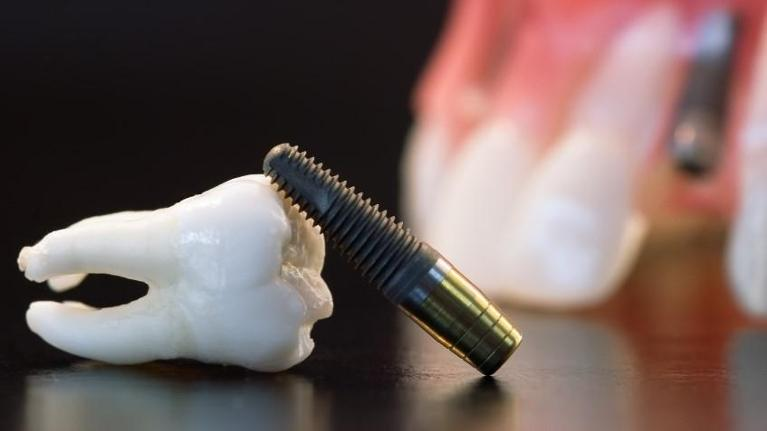 Dental Implant | Dentist Coffs Harbour